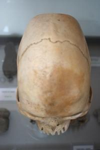 Paracs Skull 1 Paraietal- Front