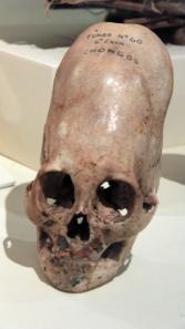 63 Ica Museum Chongos Skull