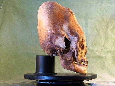 genetic mythologies nephilim from paracas skulls
