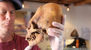 Brien with Elongated skull