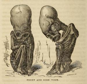 Rivero Peruvian Antiquities fetus figure-2